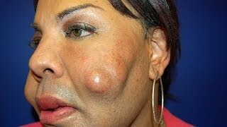 Cosmetic Surgery Disaster: Woman Dubbed