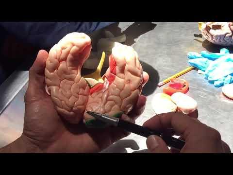 Cerebro Interno Y Sistema Ventricular.