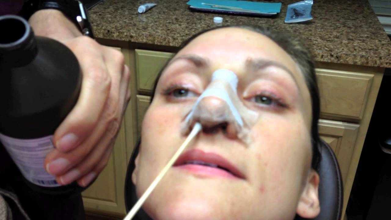 Rhinoplasty Recovery Days 1 Through 7 Nose Cleaning Instructions Dr Naderi Youtube
