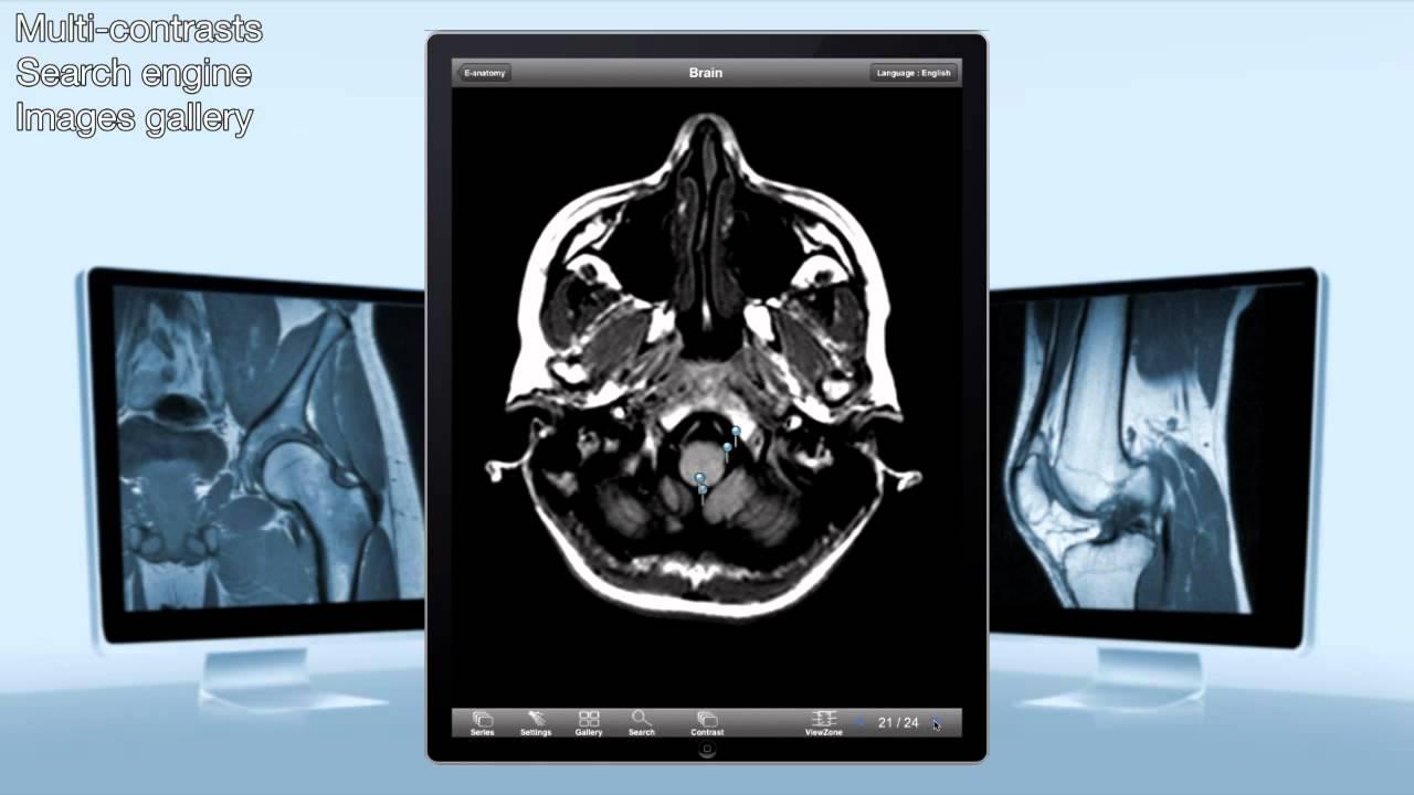 e-Anatomy IMAIOS on iPad - YouTube