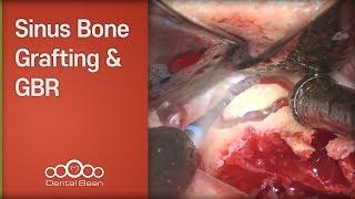 [#Dentalbean] Sinus Bone Grafting \u0026 GBR