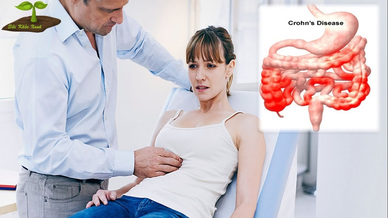 Crohn - bệnh viêm ruột, Dấu hiệu nhận biết và điều trị/Sức khỏe xanh