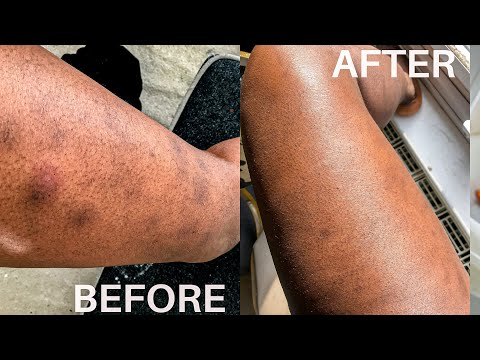 HOW TO REMOVE SCARS ON LEGS|  BODY CARE, TIPS TO REMOVE DARK MARKS