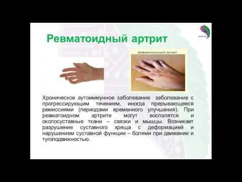 Подагра: виды, причины, симптомы, диагностика, лечение