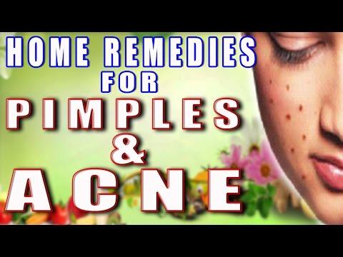 Home Remedies for Pimples & Acne II कील मुहासों का घरेलू इलाज II