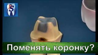 видео Композитная пломба