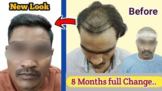 Best Hair Transplant In India   case study : 8 Months Results of Best Hair Transplant