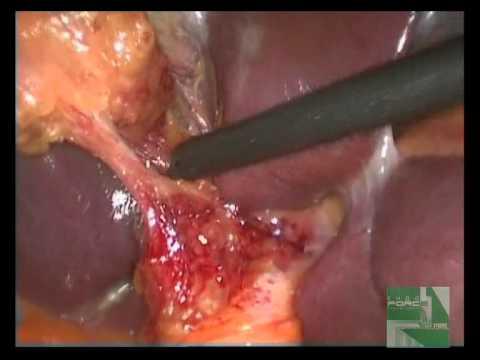 Лапароскопическая холецистэктомия удаление желчного