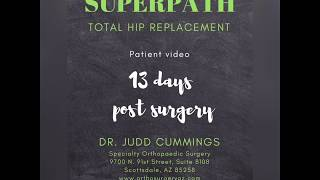 Dr. Judd Cummings - SuperPath Patient Testimony - 13 days post surgery
