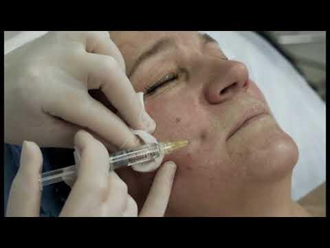 Биоармирование лица гиалуроновой кислотой отзывы косметологов