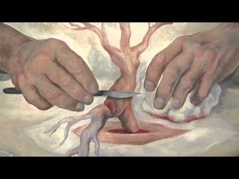The Hands Of Dr. Moore, Diego Rivera