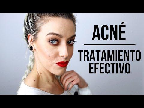 COMO ELIMINAR EL ACNÉ | Mi secreto para curar el acné quístico