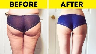 I Couldn't Get Rid of Cellulite, Then I Found This Natural Remedy: it works fine!