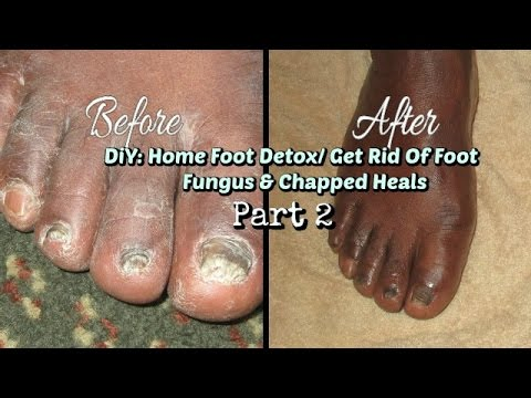 Part 2 - DIY: Home Foot Detox:  Get Rid Of Foot Fungus & Chapped Cracked Heals