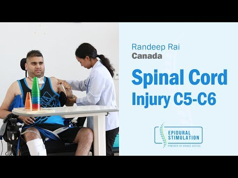 Canadian C5-C6 Spinal Cord Injury Patient Randeep's Road to Recovery After Epidural Stimulation