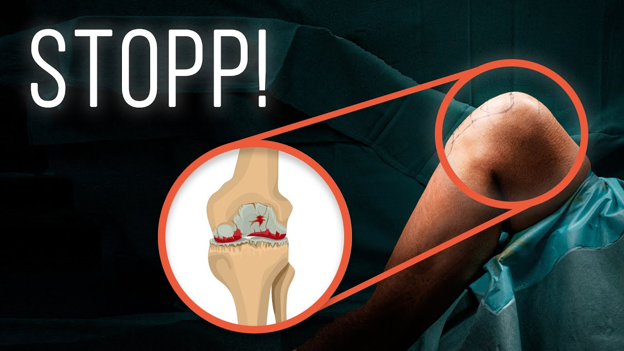 gonarthrose ursache amp 220bungen bei kniearthrose youtube
