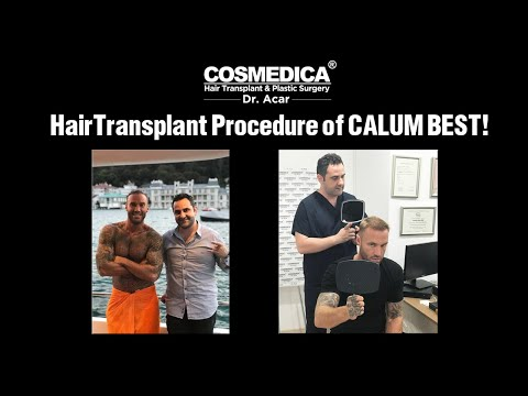 We Are Honored To Host The Famous TV Star #CALUM BEST In Cosmedica Clinic! Www.cosmedica.com