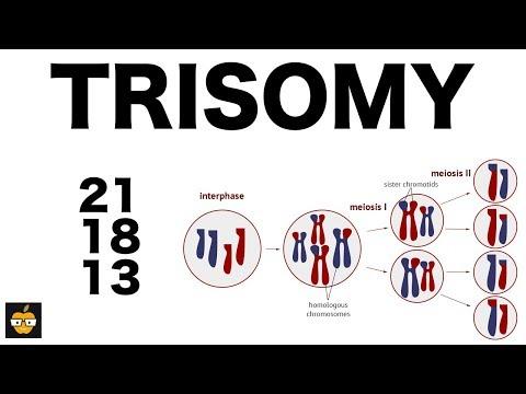 Gene Expression in Trisomy 21 Flashcards | Quizlet |Nondisjunction Trisomy 21