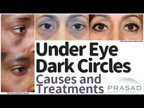 What Causes Under Eye Dark Circles, and How they are Treated