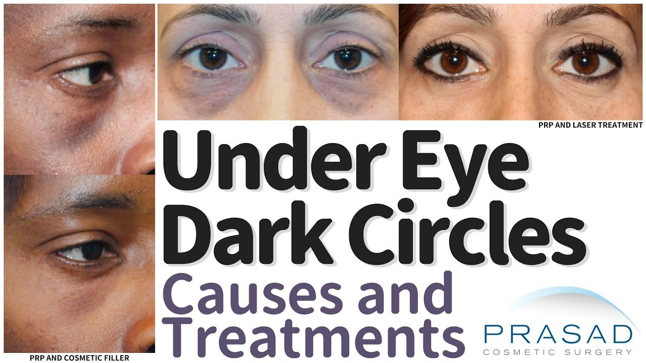 What Causes Under Eye Dark Circles, and How they are ...
