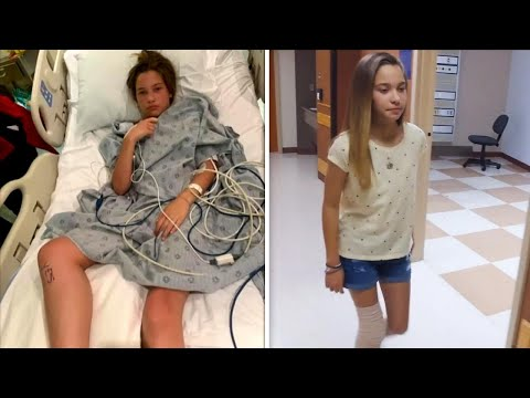 12-year-old-walks-after-overcoming-flesh-eating-bacteria