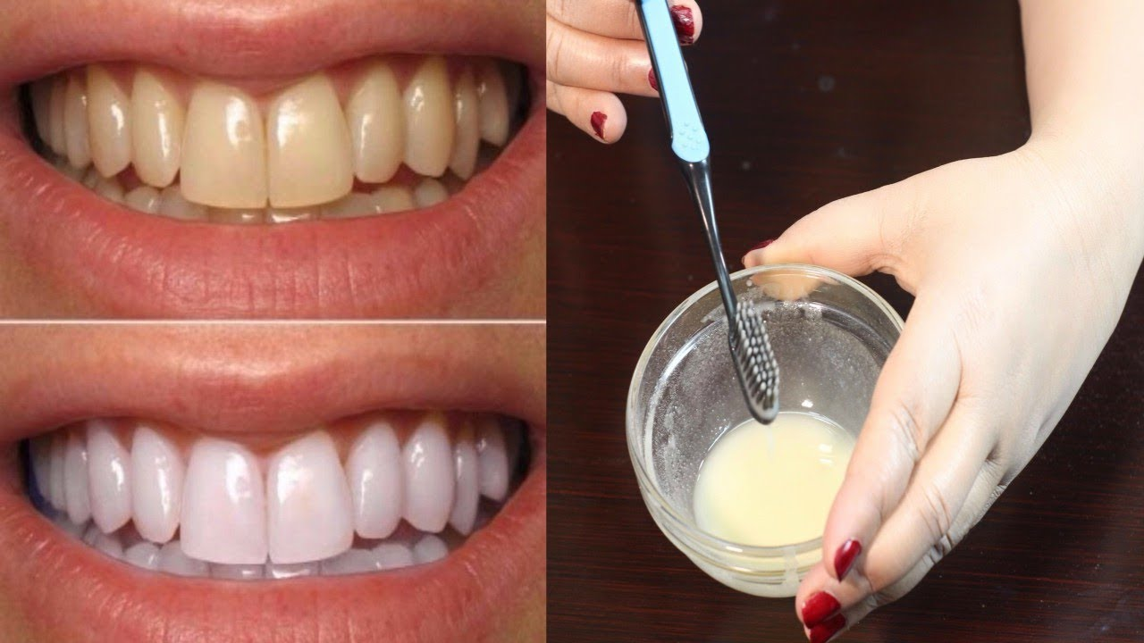 How To Whiten Teeth - Best Teeth Whitening Method - Teeth ...