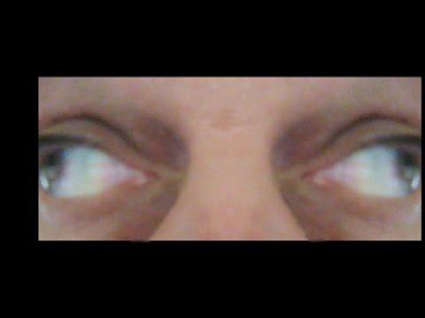 Покраснение глаз - причины и лечение на сайте