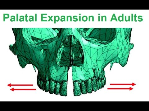 Is Palatal Expansion Possible in Adults by Dr Mike Mew