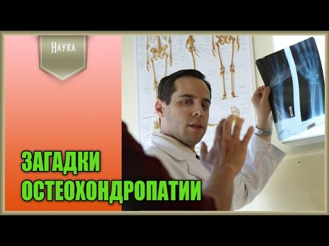 Лактоза - состав, свойства, применение, польза