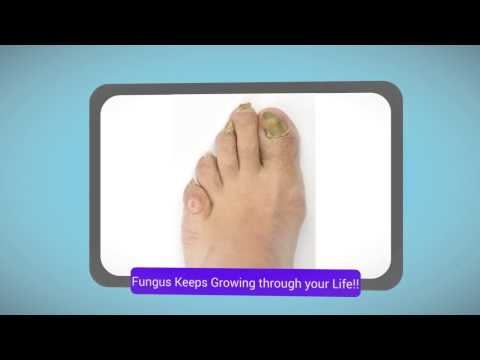 Fungal Nail Infection – How to Get rid of!