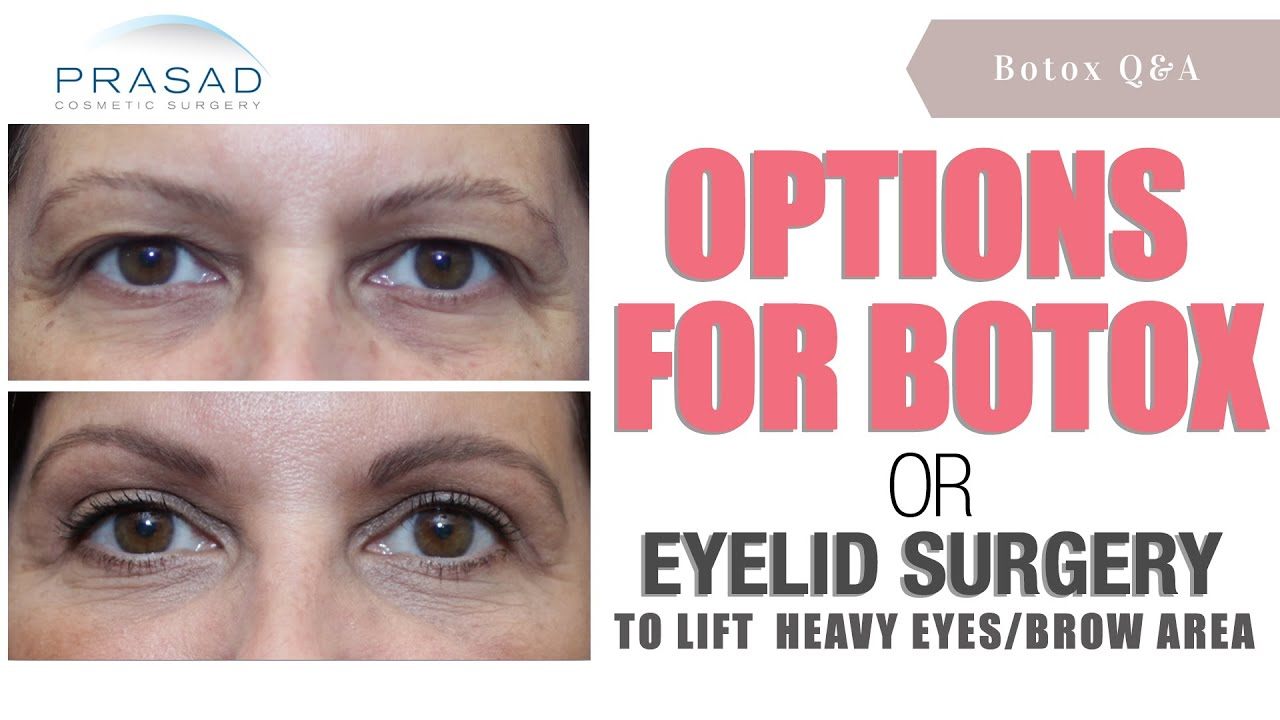 How Lifting The Brows Can Be Done With Botox A Brow Lift Or