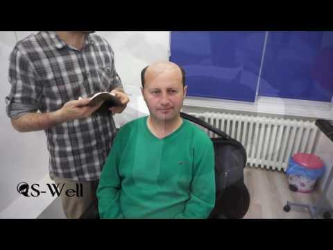 Protez Saç Uygulaması Nasıl Yapılır