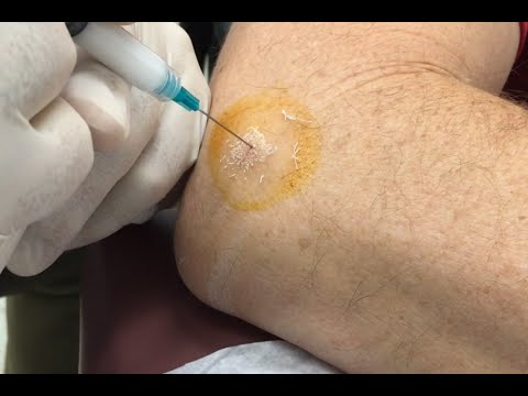 tennis-elbow-cortisone-injection,-epicondylitis-treatment-for-marco