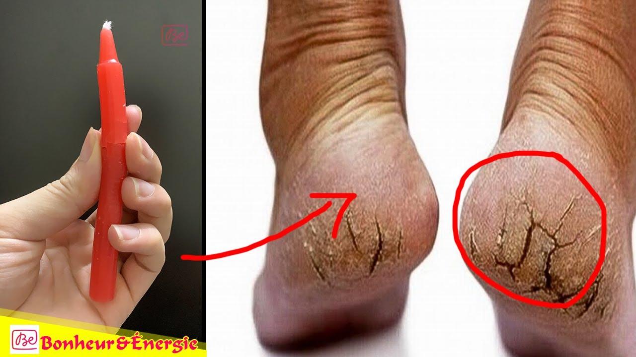 soigner crevasse pied