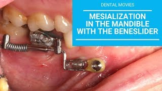 Mesialization in the mandible with the beneslider