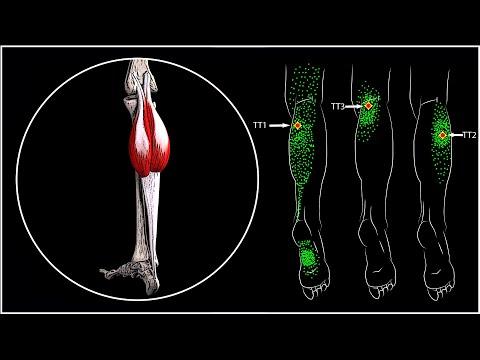 Что делать если ночью свело икроножную мышцу и болит несколько дней