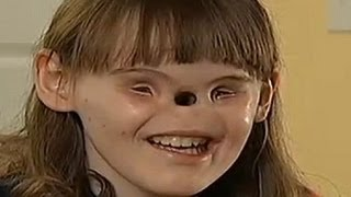 Repeat youtube video Girl Born With No Eyes & No Nose - Cassidy Hooper