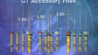 ProFile® GT System Features