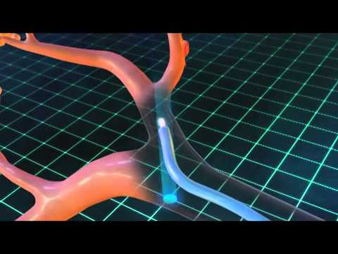 Navigational bronchoscopy medical animation