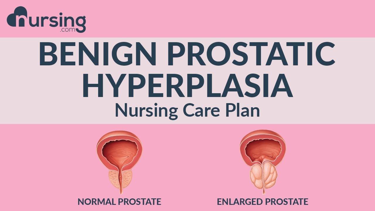 Prostatitis és erotika