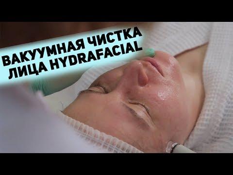 Чистое лицо за полчаса! Вакуумная чистка лица HydraFacial