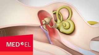 Conductive Hearing Loss Explained | MED-EL