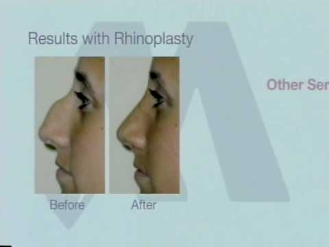 Masri Clinic - Laser and Cosmetic Surgery - Detroit, MI
