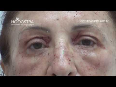 Cirugía de Párpados y Bolsas + Láser de Co2 (13014)