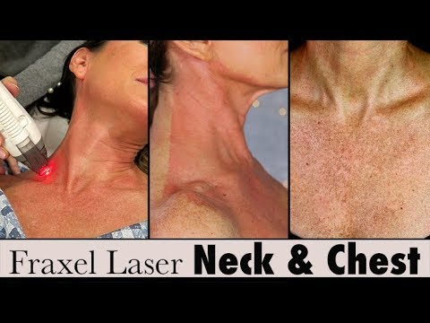 Fraxel Laser Treatment for Sun Damage Chest + Neck   Before + After