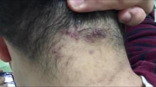 видео Себорея кожи головы лечение в домашних условиях| #себореяголовы #себорейныйдерматит #edblack