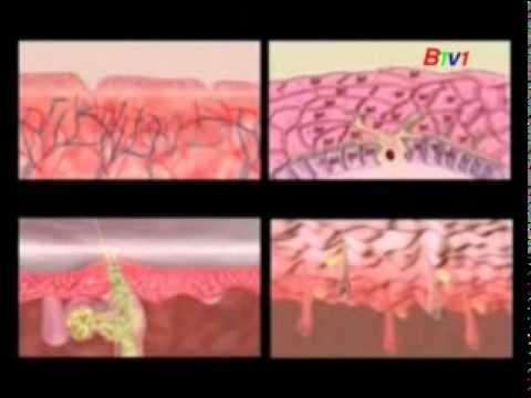 IPL- Công nghệ GEM trong thẫm mỹ điều trị da