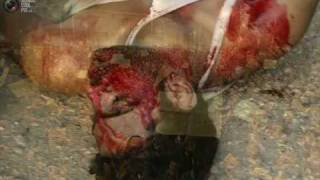 Ya BlAdy(Dead.B.RoMa)+(kaReM.h)ft(mc.VoLcaNo)rap elminia - YouTube.flv