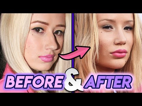 Iggy Azalea | Before & After Transformation ( Plastic Surgery )
