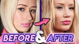 Baixar Iggy Azalea | Before & After Transformation ( Plastic Surgery )